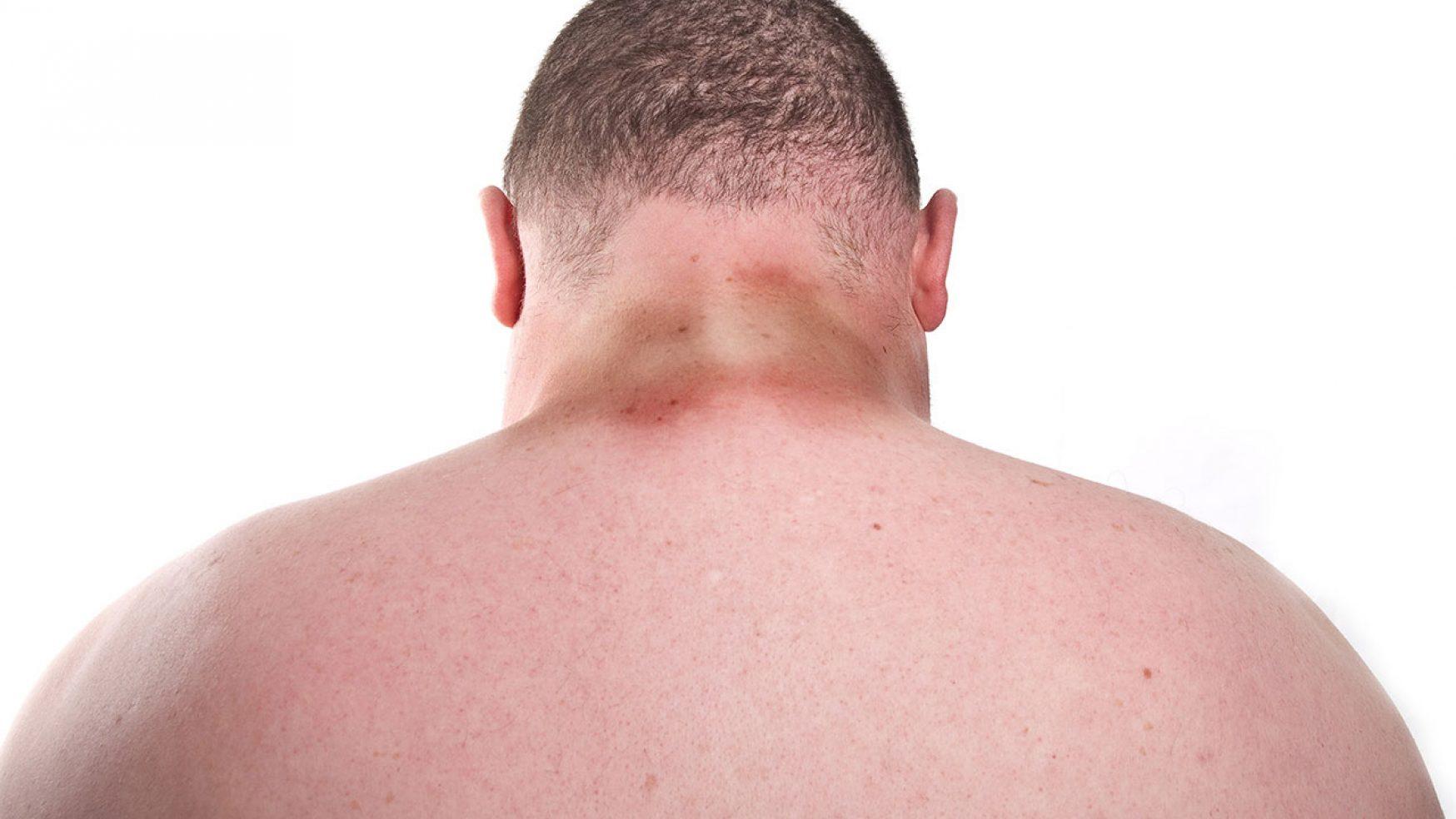 ¿Qué es Acantosis Nigricans o Pigmentaria?
